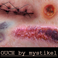 OUCH by mystikel 3D Models 2D Graphics mystikel
